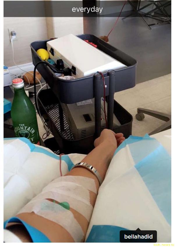 Белла Хадид борется с болезнью Лайма