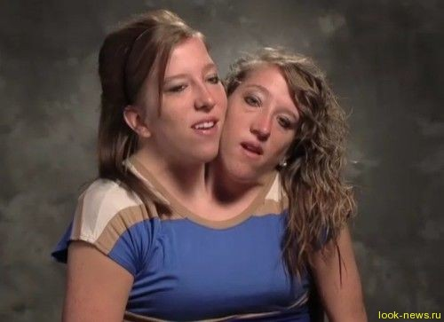 Сиамские близнецы: одна жизнь на двоих