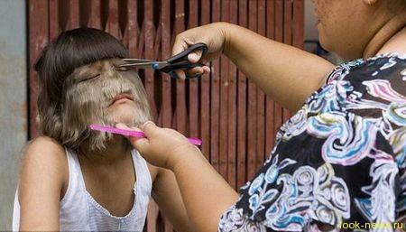 Горе и радость самой волосатой девочки в мире