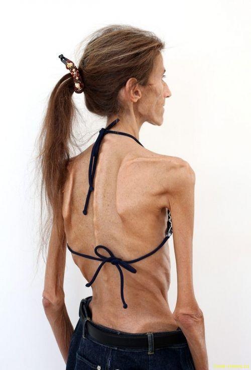 Валерия Левитина: самая худая женщина в мире борется против анорексии