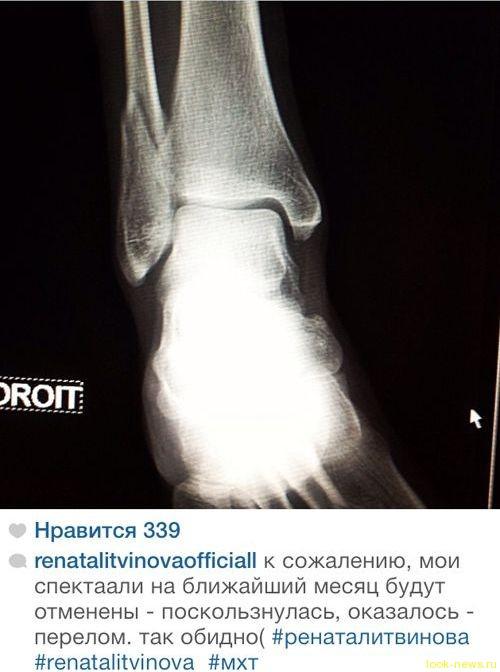 Рената Литвинова сломала ногу
