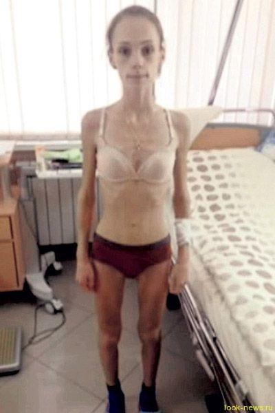 Фигуристка Юлия Антипова начинает побеждать анорексию