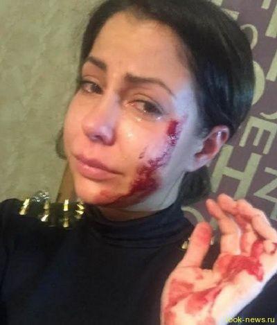 Порноактрису Елену Беркову жестоко избили