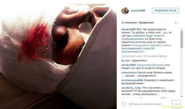 Эвелина Бледанс встретится с женщиной, обвинившей ее мужа в избиении