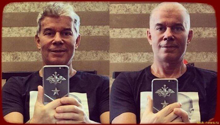 Олег Газманов опубликовал в Instagram «лысое» селфи