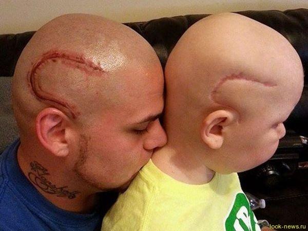 Отец вытатуировал на своей голове шрам сына